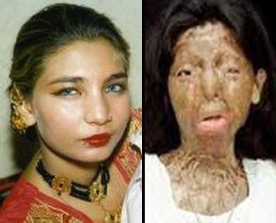 254428-pakistani-acid-attack-victim-fakhra-younus-committed-suicide-in-italy1